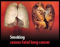 Smoking01